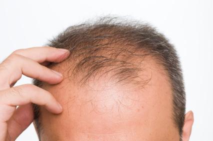 7 راه حل طبیعی و ساده برای جلوگیری از ریزش مو