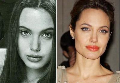 عکس های از قبل و بعد جراحی بینی بازیگران