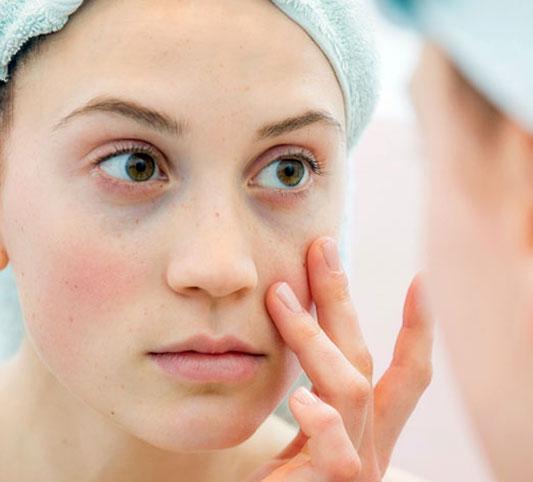 سیاهی دور چشم و بهترین درمان