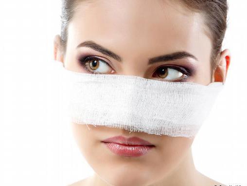 اینبار محاسن جراحی بینی