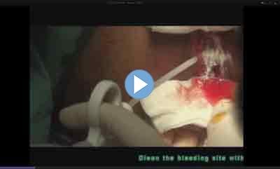 ChitoHem- Surgery