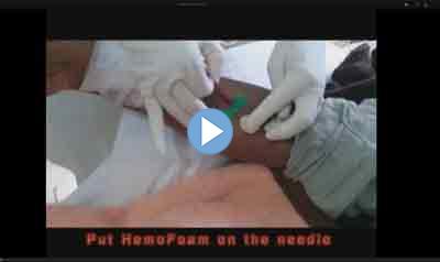 HemoFoam